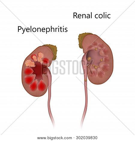 Pyelonephritis Comparison With Renal Colic. Kidney Infection, Infected, Stones. Realistic Anatomy Ve