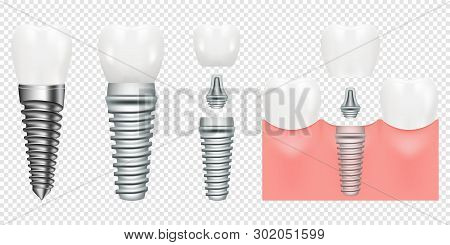 Human Teeth And Dental Implant Cut Scheme, Vector Illustration. Dental Implant Structure With All Pa