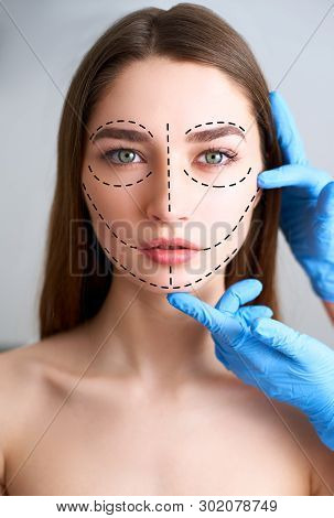 Beautiful Young Woman With Perforation Lines On Her Face Before Plastic Surgery Operation. Beauticia