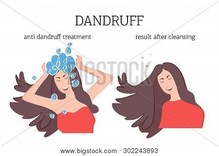The girl washes her head with a therapeutic shampoo for dandruff and the result of treatment after. Dandruff problem on the head. Vector illustration of skin disease poster