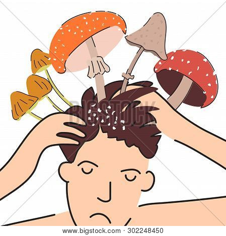 Fungal Skin Diseases. Ironic Poster Shows The Problem Of Dandruff On The Head. A Person Is Sad Becau