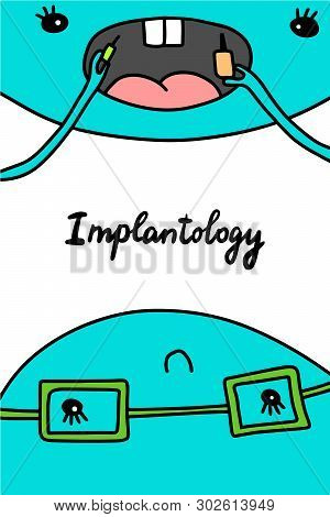 Implantology Hand Drawn Vector Illustration In Cartoon Style. Dentist And Patient. Putting New Tooth
