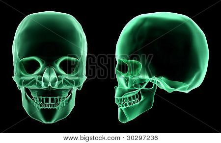 X-ray skeletal structure of the Human Skull