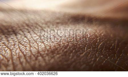 Skin Cancer. Unhealthy Skin. Human Skin Hand. Macro Textured Background.