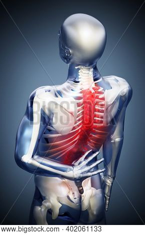 3d Illustration Showing Back Pain Or Pain On The Spine.