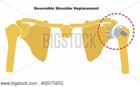 Reversible Shoulder Replacement. Shoulder Joint Replacement, Endoprosthetics. Osteoarthrosis Of The