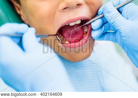 Effective Solution To Dental Problems Of Teenager. Pediatric Dentistry Requires Special Attention An