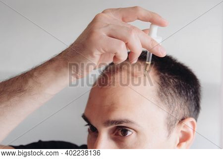 Hair Loss Treatment For Men Concept. Young Caucasian Man Looking At Mirror And Applying Anti-hair Lo