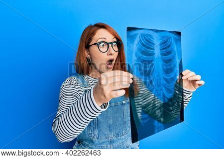 Beautiful redhead woman holding chest radiography afraid and shocked with surprise and amazed expression, fear and excited face.