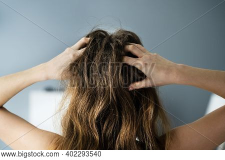 Itching Dry Head Scalp And Long Hair With Dandruff