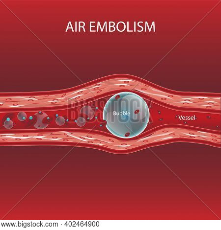 Air Bubble In Vessel Cause Of Decompression Illness Treatment By Hyperbaric Chamber