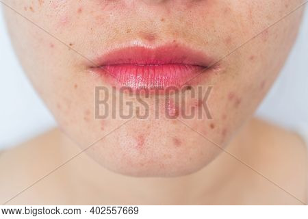 Closeup Of Woman Half Face With Problems Of Acne Inflammation (papule And Pustule) On Her Face. Conc