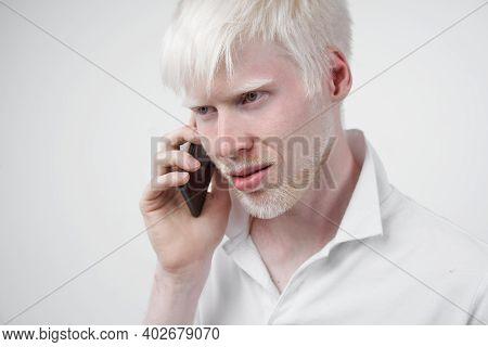 Albinism Albino Man White Skin Hair Studio Dressed T-shirt Isolated White Background Abnormal Deviat