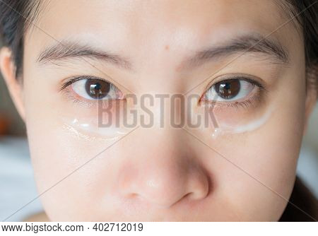 Close Up Shot Of Asian Woman Face Marking And Applying Anti Aging Cream On Her Under Eyes. The Anti