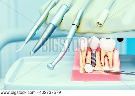 Implantology Concept. Dental Implants With Mirror In Dental Clinic.