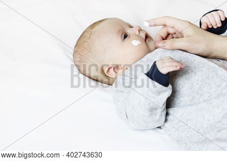 Cute Baby Face With Healing Ointment. Moms Hand With A Moisturizer Is Applied To The Babys Body To P