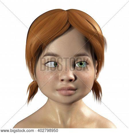 Strabismus In Children, 3d Illustration Showing Esotropia, A Type Of Eye Deviation When Eye Turns In