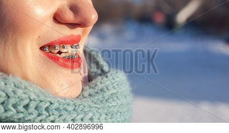 The Girl Has Braces On Her Teeth. A Girl In The Winter On The Street Smiles And Braces Are Visible O