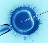 Sperm injection into the cell under the microscope poster