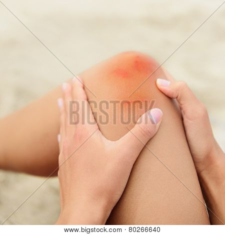 Woman nursing an injured bruised grazed knee with surface petechia on the skin and tissue discoloration in her hands in a healthcare and medical concept, close up of the joint and hands poster