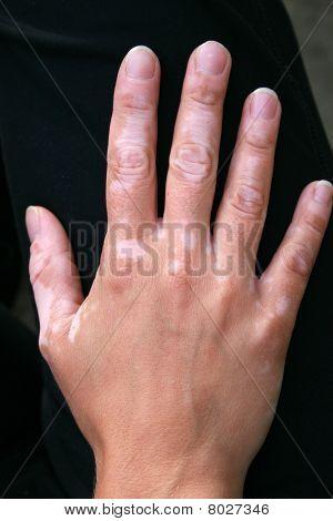 A hand with vitiligo skin condition