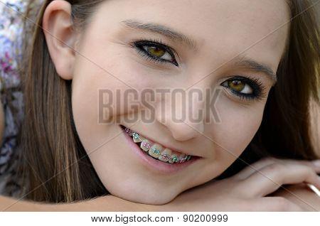 Pretty Teen With Braces