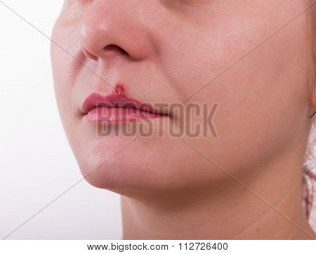 Girl lip herpes diseased