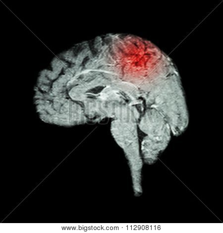 Magnetic Resonance Imaging ( Mri ) Of Brain And Stroke ( Medical , Science And Healthcare Concept )