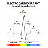 ECG of a heart in normal sinus rhythm. Schematic representation. wave and segment names poster