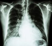 Heart failure ( film x-ray chest PA upright : show cardiomegaly and interstitial infiltrate both lung ) poster