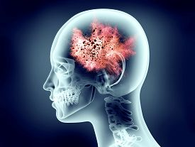 Xray Image Of Human Head With Explosion