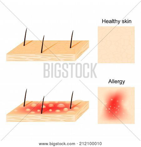 Allergy. Hives (urticaria) are a common allergic symptom. skin rash. healthy skin and allergic reactions. top and side view