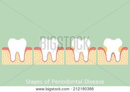 Step Of Periodontal Disease / Periodontitis / Gingivitis / Gum Disease, Dental Problem