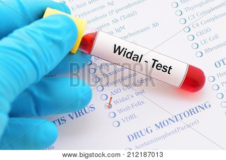 Test tube with blood sample for widal test poster