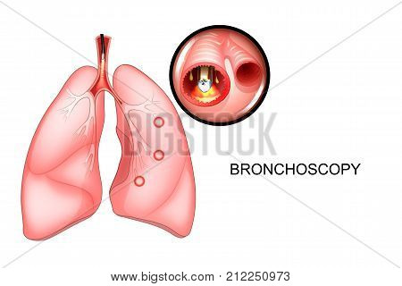 vector illustration of a bronchoscopy of the lungs sectional view