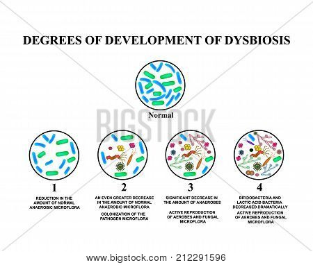 4 degrees of development of dysbiosis. Dysbacteriosis of the intestine. The large intestine. dysbiosis of colon. Bacteria, fungi, viruses. Infographics. Vector illustration on isolated background