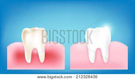 Collection of dirty tooth and gum compare with clean and strong white tooth wiht glittering bright light element on blue background vector illutration eps10