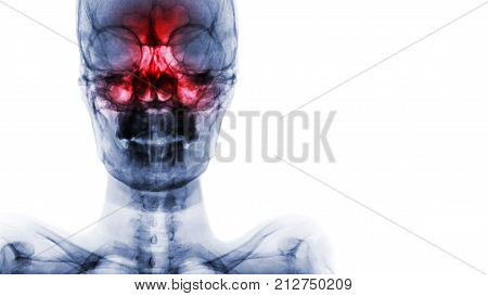 Sinusitis At Frontal , Ethmoid , Maxillary Sinus . Film X-ray Of Skull And Blank Area At Right Side