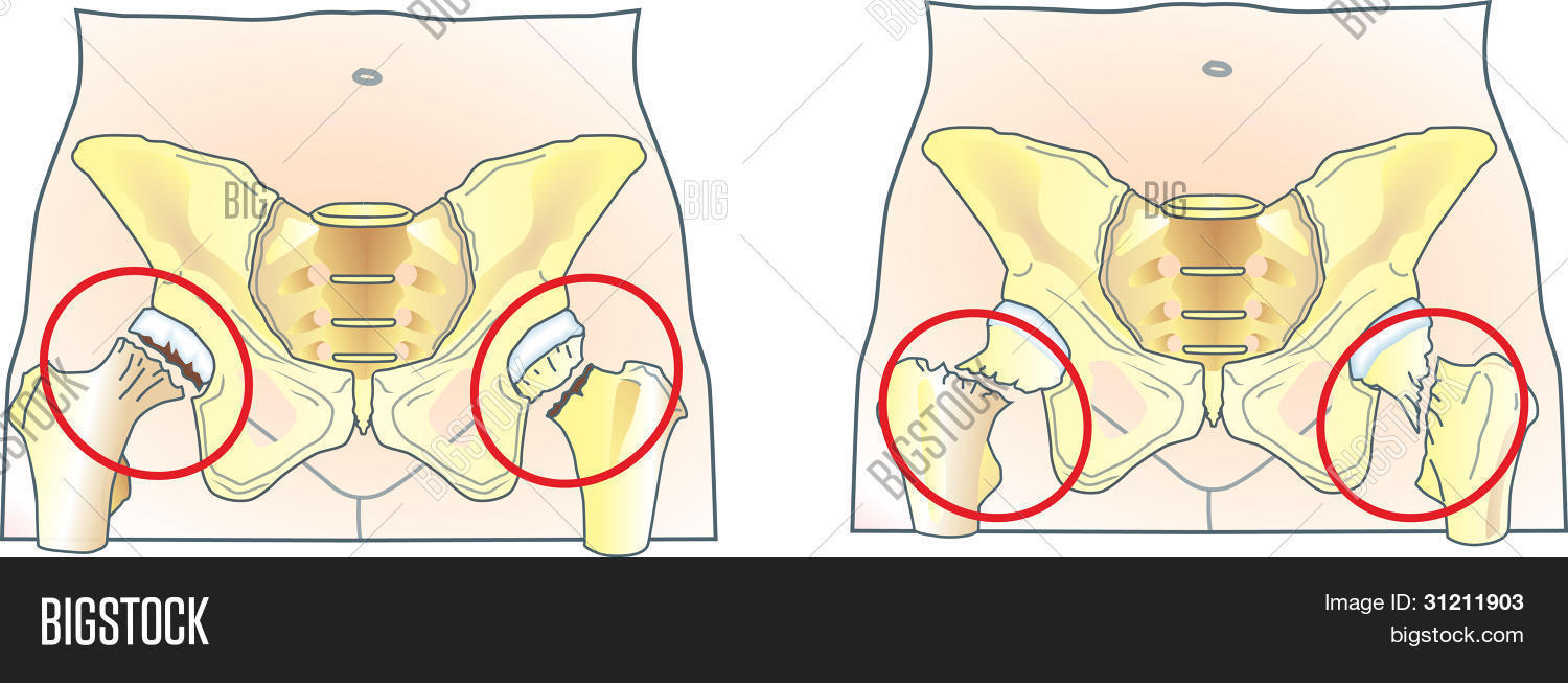 Femoral Neck Fracture Vector & Photo (Free Trial) | Bigstock