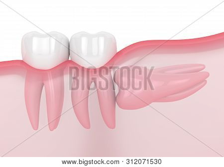 3d Render Of Jaw With Wisdom Horizontal Impaction Over White Background. Concept Of Different Types
