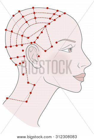 Active Acupuncture Points On The Profile Template Girl With Shaved Bald Hairless Head And A Beautifu