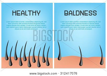 Hair Loss Stages Set Of Before And After Steps. Side View Of A Man Losing Hair Before And After Hair