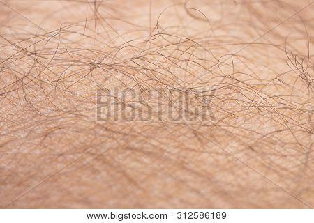 Closeup To Hair Arm Of Man Skin