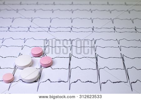 Electrocardiogram With Brugada Syndrome. Colored Pills On An Ekg Path. Sudden Cardiac Death Due To A