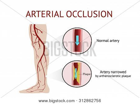 Arterial Occlusion, Acute Arterial Occlusion, Atherosclerosis, Cramp, Vector Illustration