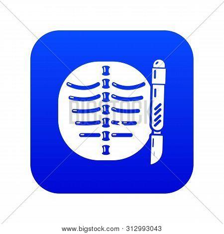 Xray Of Rib Icon. Simple Illustration Of Xray Of Rib Vector Icon For Web.
