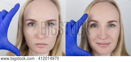 Before And After. A Woman Examines Dry Skin On Her Face. Peeling, Coarsening, Discomfort, Skin Sensi