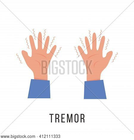 Hands With Tremor Symptom. Parkinson Disease. Trembling Or Shivering Arms. Physiological Stress Symp