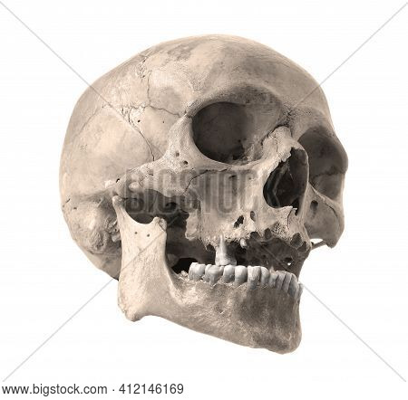 Skull Of The Person On A White Background. Sepia Color Photo