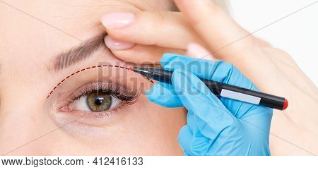 Woman Shows Drooping Eyelid For Plastic Surgery. Doctor Plastic Surgeon Marks With A Felt-tip Pen A